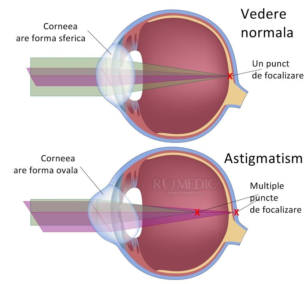 chirurgia vederii astigmatism