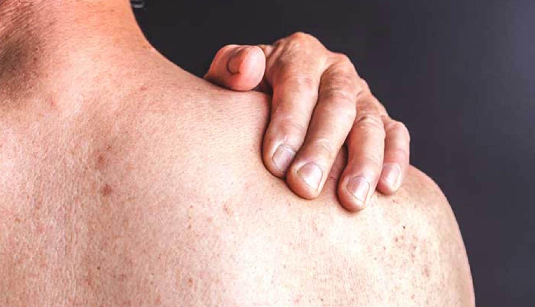 best psoriasis treatment in bangalore